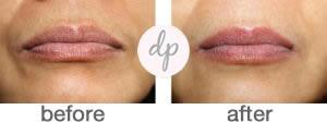 Soft Contour Lips 1