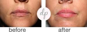 Soft Contour Lips 2