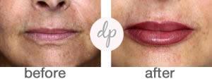 Bardot Full Lips 7