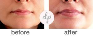 Baby Lips 2