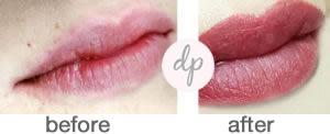 Bardot Full Lips 2