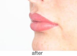 Bardot Full Lips 5