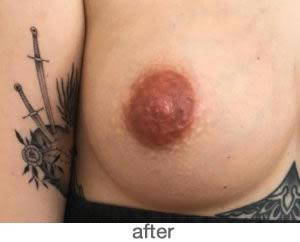 Medische pigmentatie 5