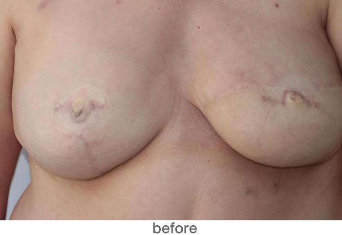 Tepelpigmentatie 6