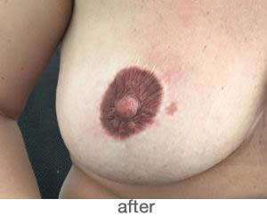 Medische pigmentatie 4