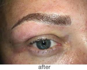Medische pigmentatie 1