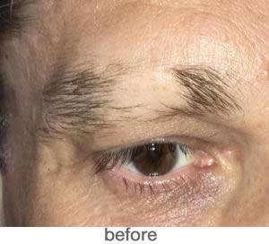 Medische pigmentatie 2
