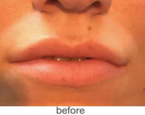 Bardot Full Lips 6
