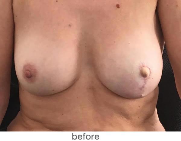 Tepelpigmentatie 5