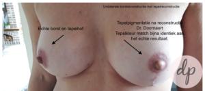 Tepelpigmentatie 1