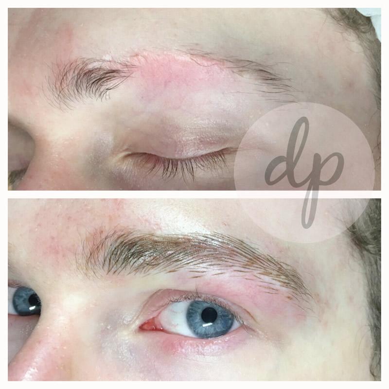 Medische pigmentatie 6